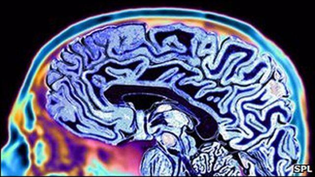 Нічний тренінг для мозку